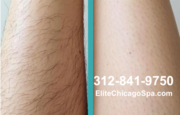 Laser Hair Removal Deals in Chicago
